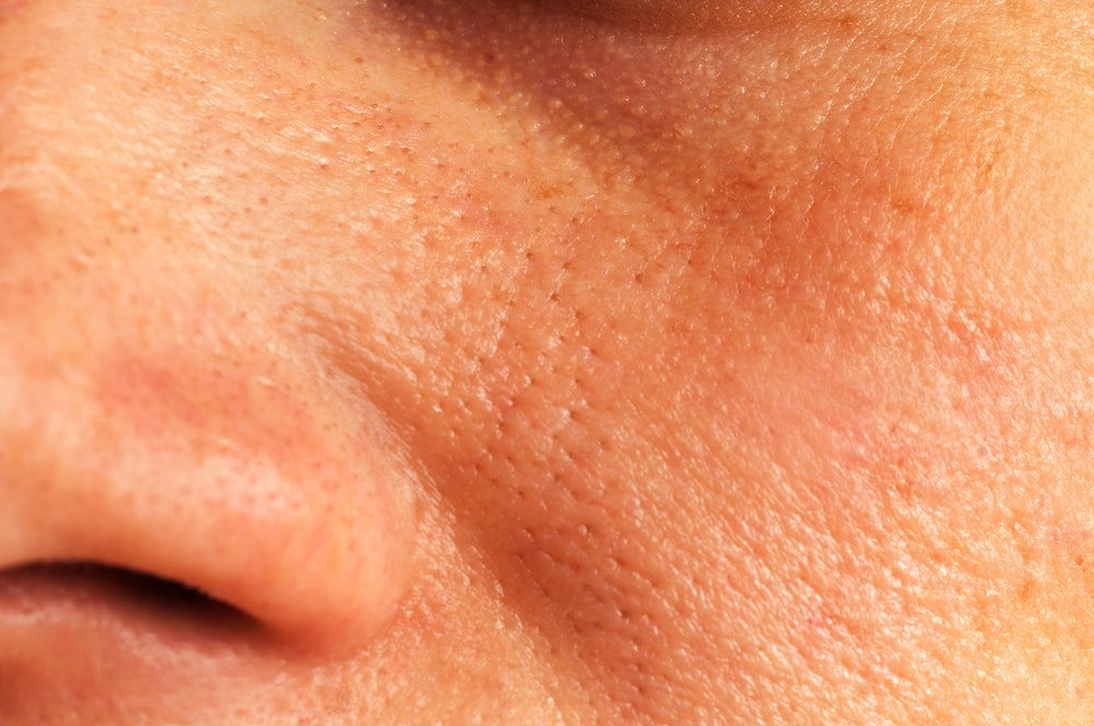 Cleaning and closing facial pores