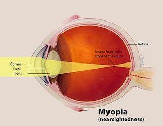 beist myopia)
