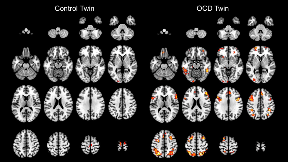 How Seeing Problems In The Brain Makes Stigma Disappear