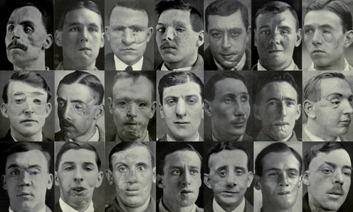 Images from Plastic Surgery of the Face by Sir Harold Gillies, 1920