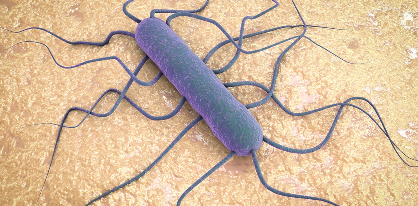 Affordable Health Care >> Spike in Listeria infections in South Africa: why it matters