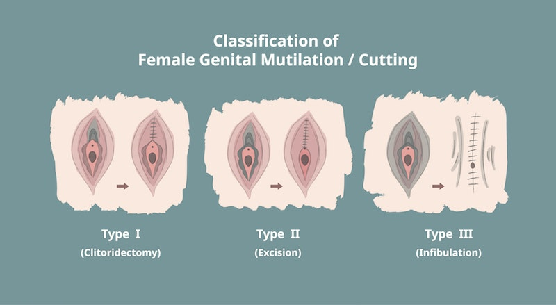 female body modification and not mutilation Find the perfect female genital mutilation stock photos and editorial news pictures from getty images download premium images you can't get anywhere else.