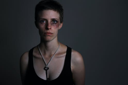 Image result for domestic violence women