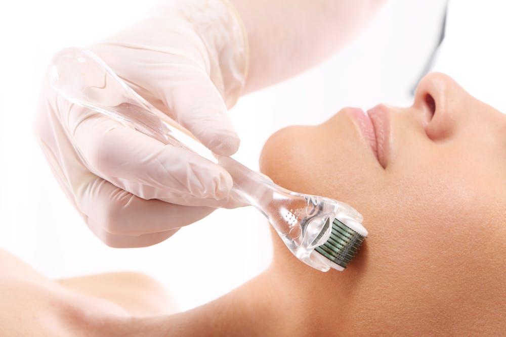 Will microdermabrasion or skin needling give me better skin?