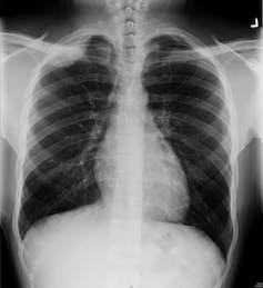 Curious Kids - How Do X-Rays See Inside You? - file 20171123 6072 1f8jwdu.jpg?ixlib=rb 1.1