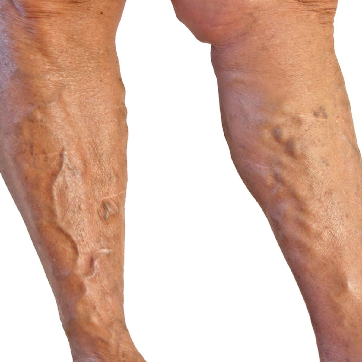 spider veins on calves