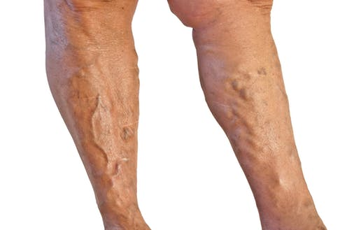I've got varicose veins  What can I do about them?