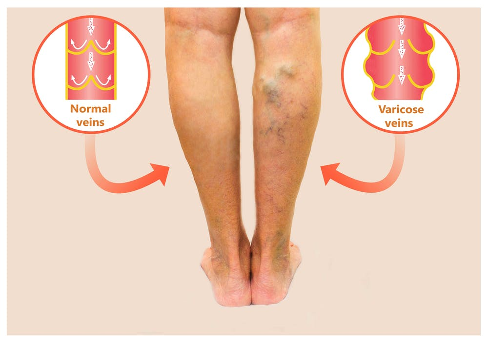 I've got varicose veins. What can I do about them?