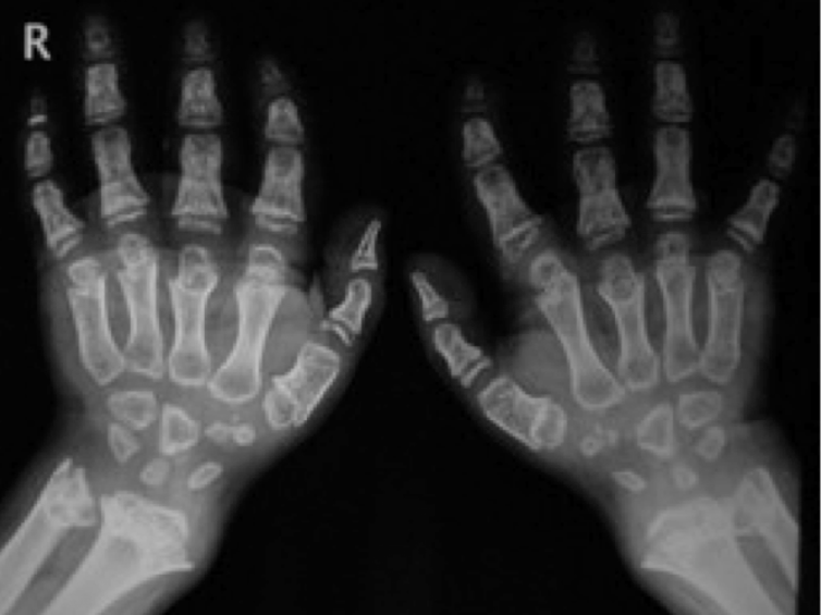 Bone of contention: can wrist X-rays really reveal the age of people ...