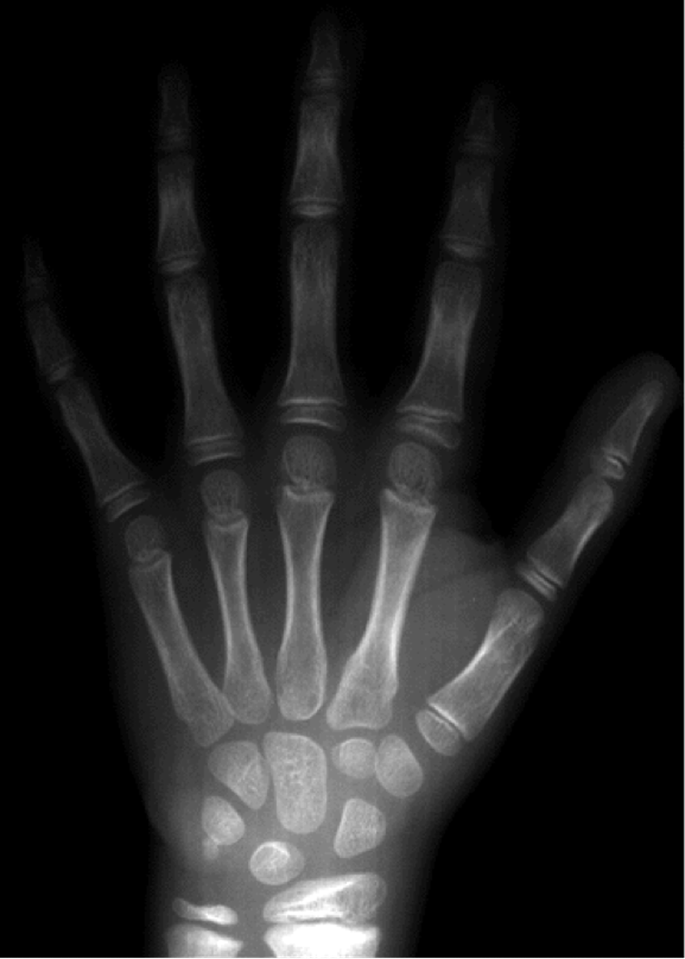 Bone Of Contention Can Wrist X Rays Really Reveal The Age Of People
