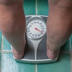 Bulimia do you really lose weight photo 7
