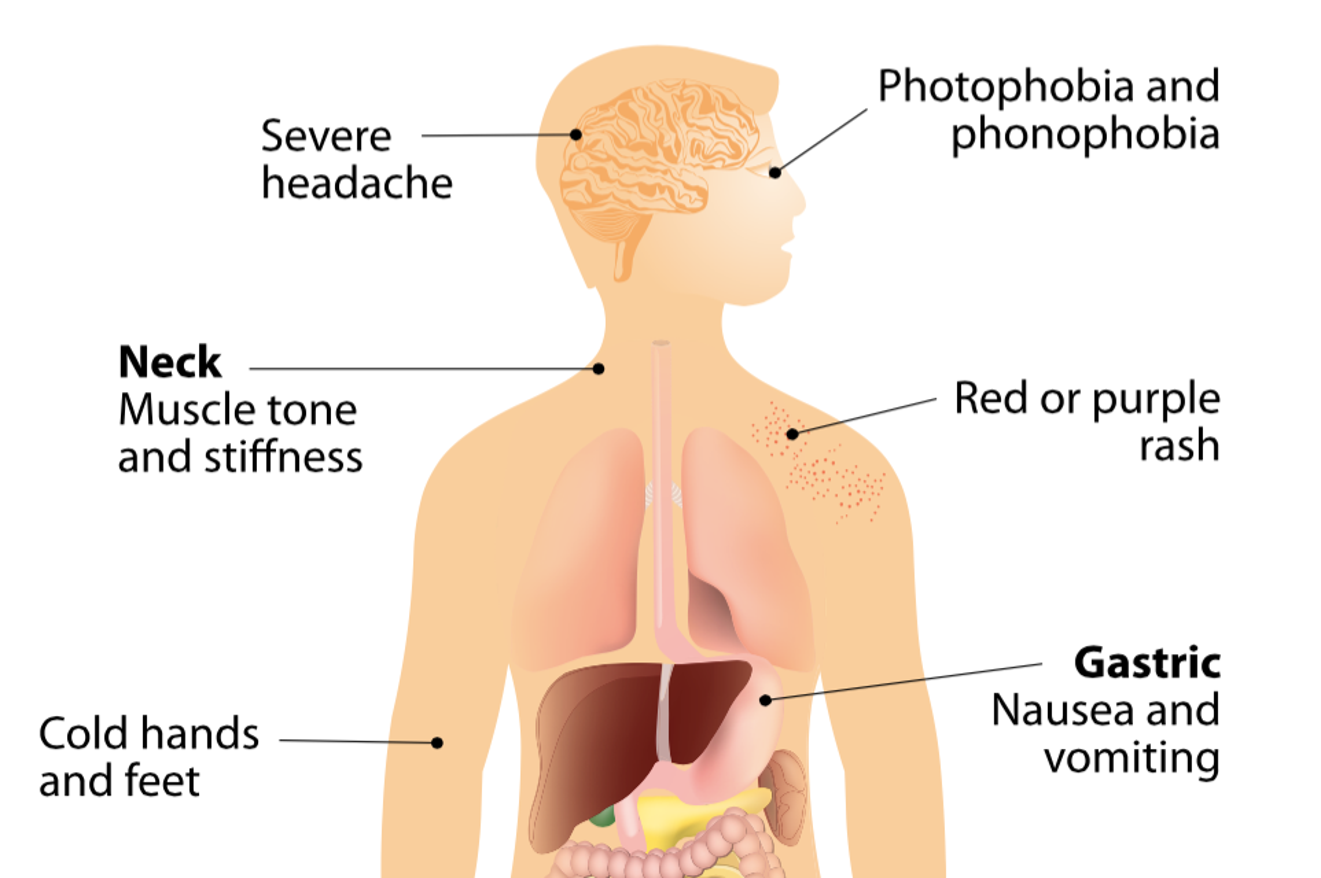 sudden deafness treatment steroid
