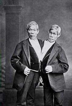 Chang Bunker And Eng The Conjoined Twin Brothers Whose Condition Birthplace Became Basis For Term Siamese Twins