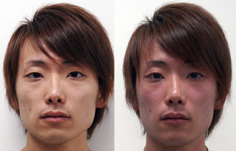 Aldehyde dehydrogenase deficiency asian dating 1