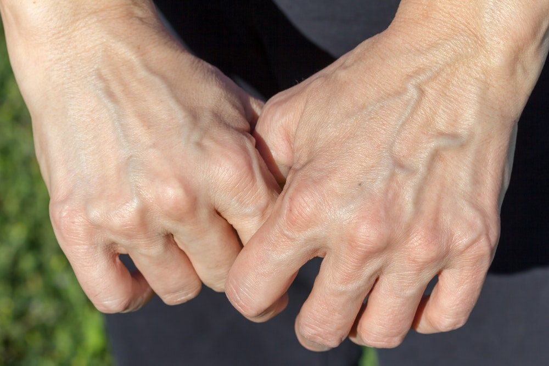blue blood vessels in hands