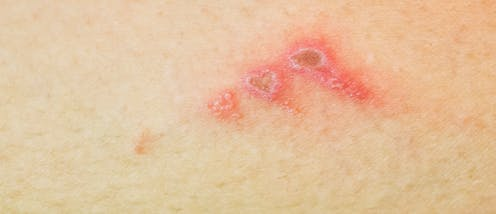 What Are School Sores And How Do You Get Rid Of Them
