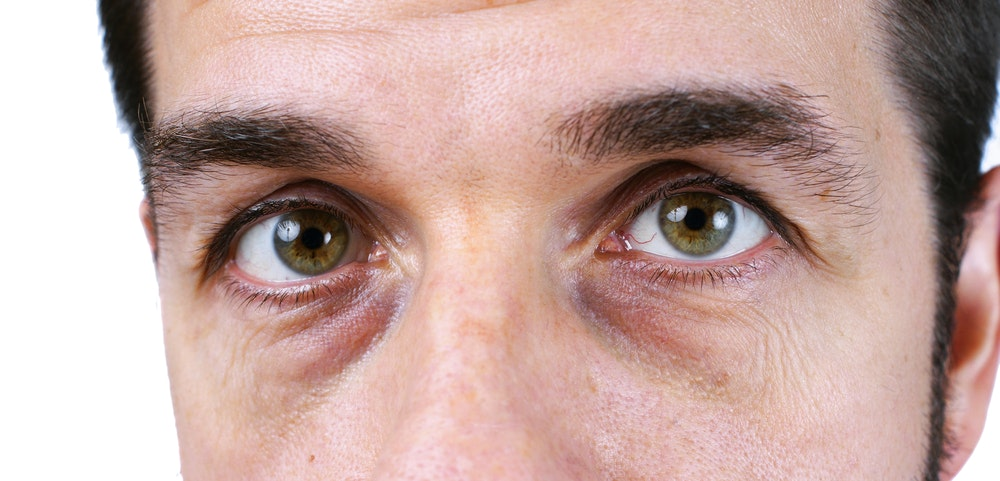 What Causes Dark Circles Under Your Eyes