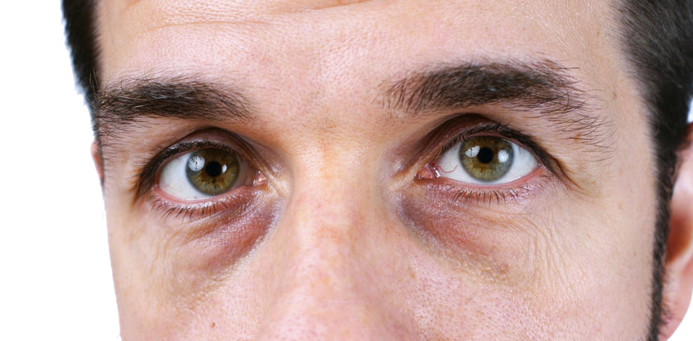 dbc27e906fd679 I've always wondered: why do we get dark circles under our eyes?