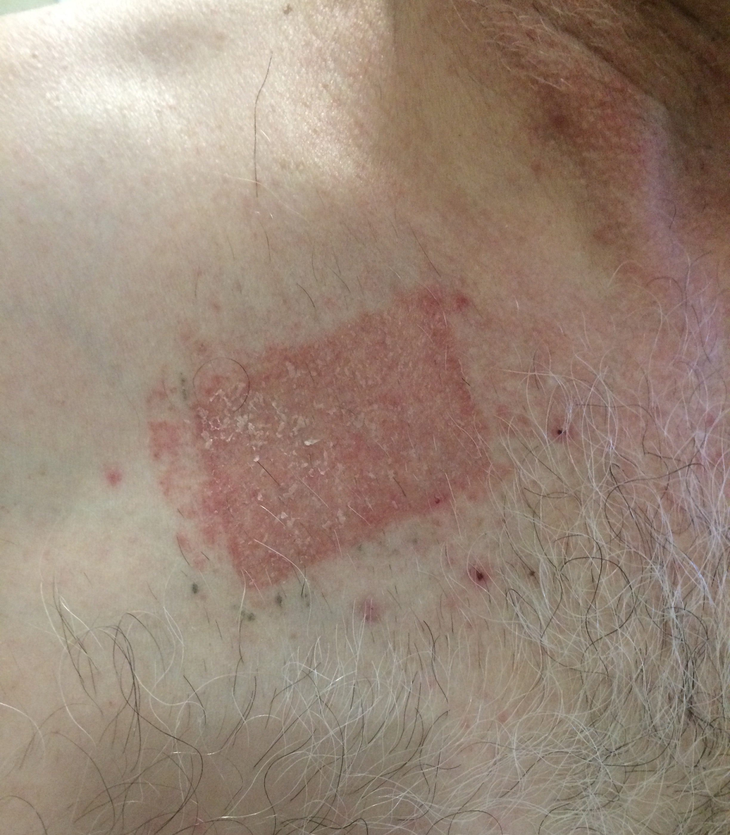 Contact Dermatitis: Common Skin Rashes And What To Do About Them
