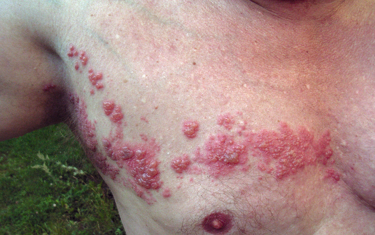 Common Skin Rashes And What To Do About Them