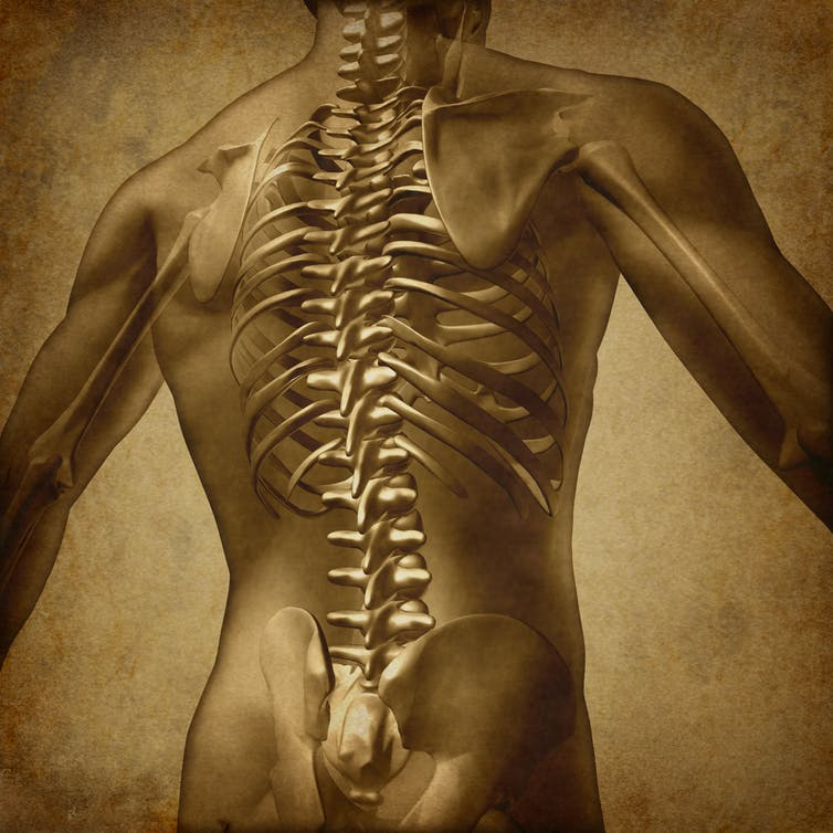 Spinal fusion surgery for lower back pain: it's costly and there's little evidence it'll work