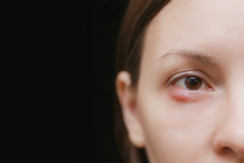 1346dcae1 Health Check: what caused my stye and can I get rid of it?