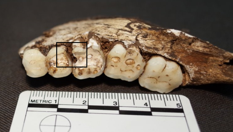 Carious lesions on the mandibular right second premolar and first molar. Homo naledi. Photo: Ian Towle
