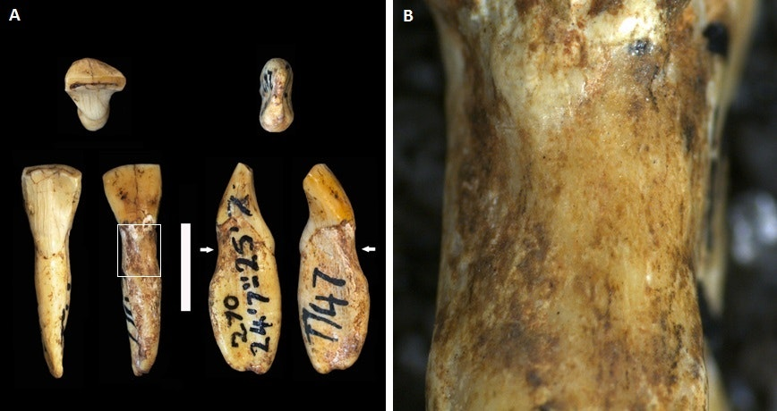 Australopithecus africanus teeth with lesions. Ian Towle, Author provided