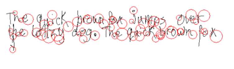 10 Year Old Boy With Dyslexia Pauses Occur Within Words Due To Spelling Difficulties