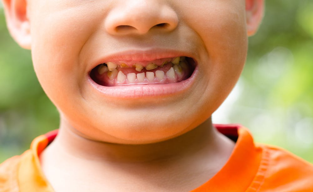 Child Tooth Decay Is On The Rise But Few Are Brushing Their Teeth Enough Or Seeing The Dentist