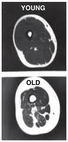 MRI of the thigh: as people age, muscle mass declines and turns to fat. Author provided: Janet Lord/University of Birmingham.