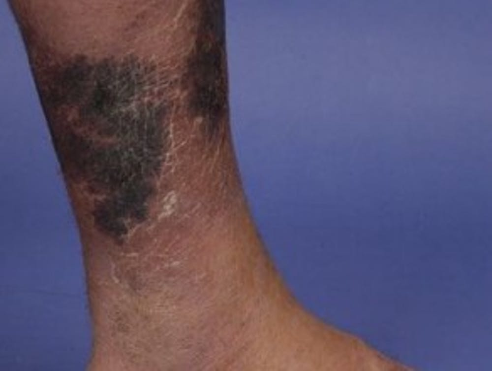 Four Of The Most Life Threatening Skin Conditions And What You Should Know About Them
