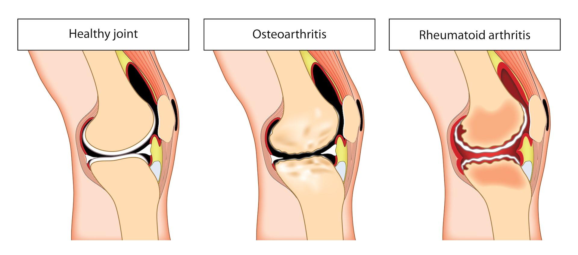 Types Of Arthritis Blamb Shutterstock