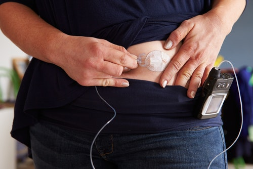How a self-powered glucose-monitoring device could help people with diabetes