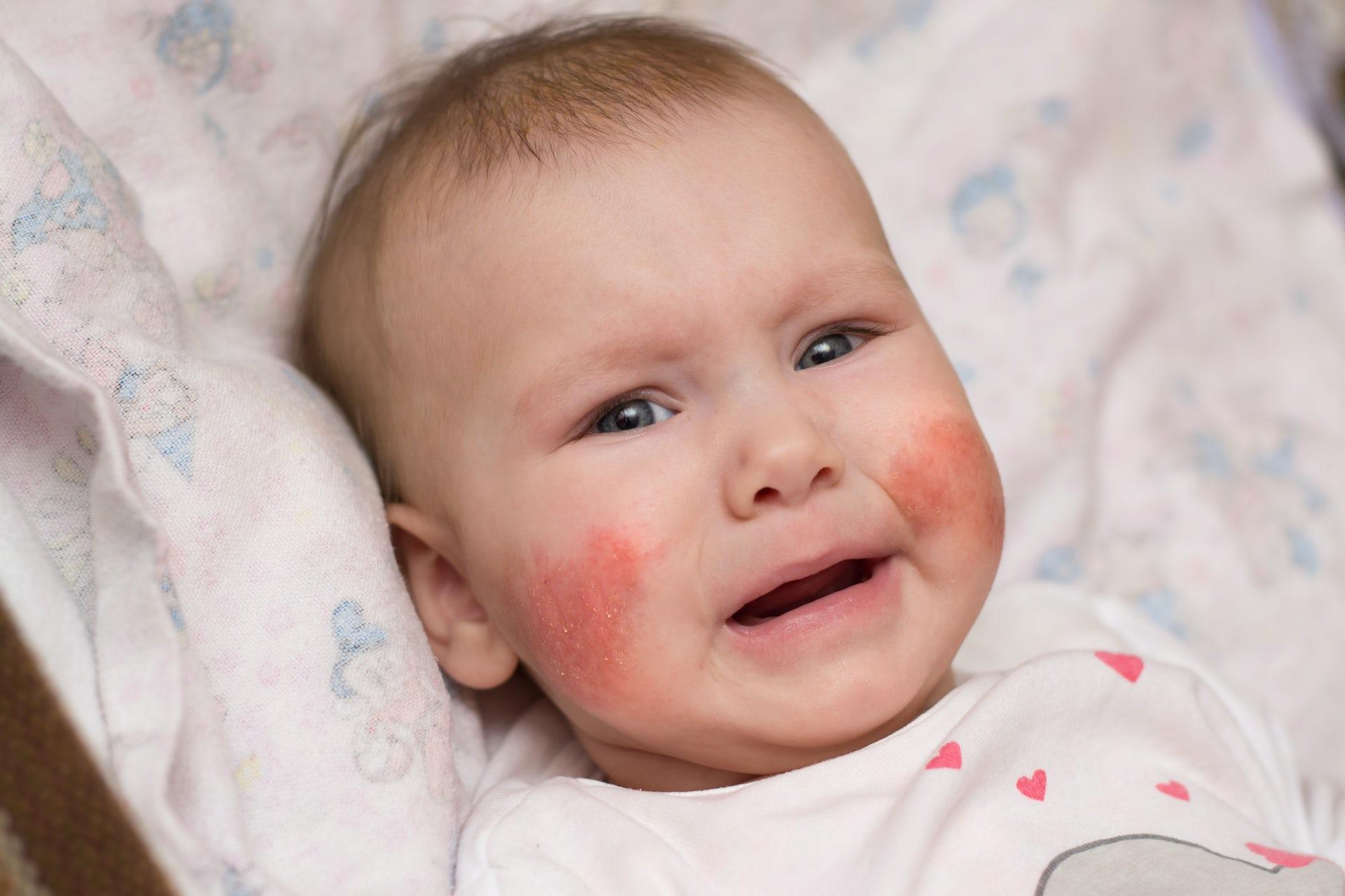 Applying live bacteria to skin improves eczema