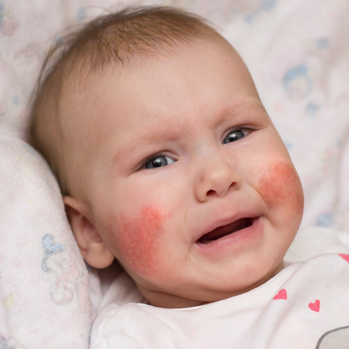 dermatitis joghurt