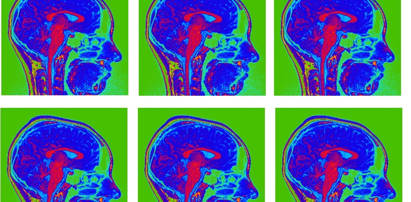 Is it rational to trust your gut feelings? A neuroscientist