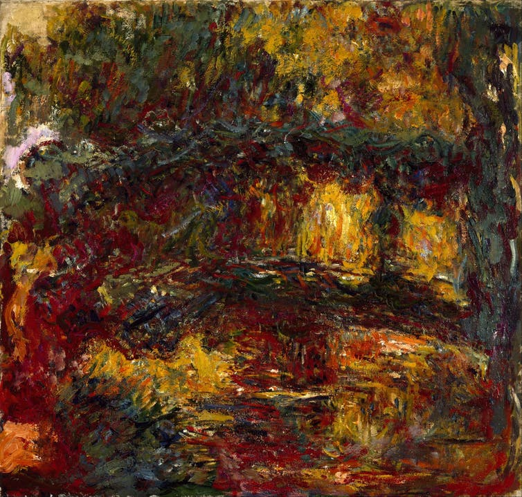 How eye disorders may have influenced the work of famous painters