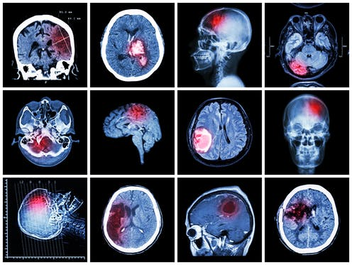 Concussions Are Brain Injuries Sit Your >> Having A Brain Injury Does Not Mean You Ll Get Dementia