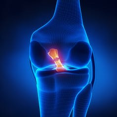 Considering knee surgery? Read this first