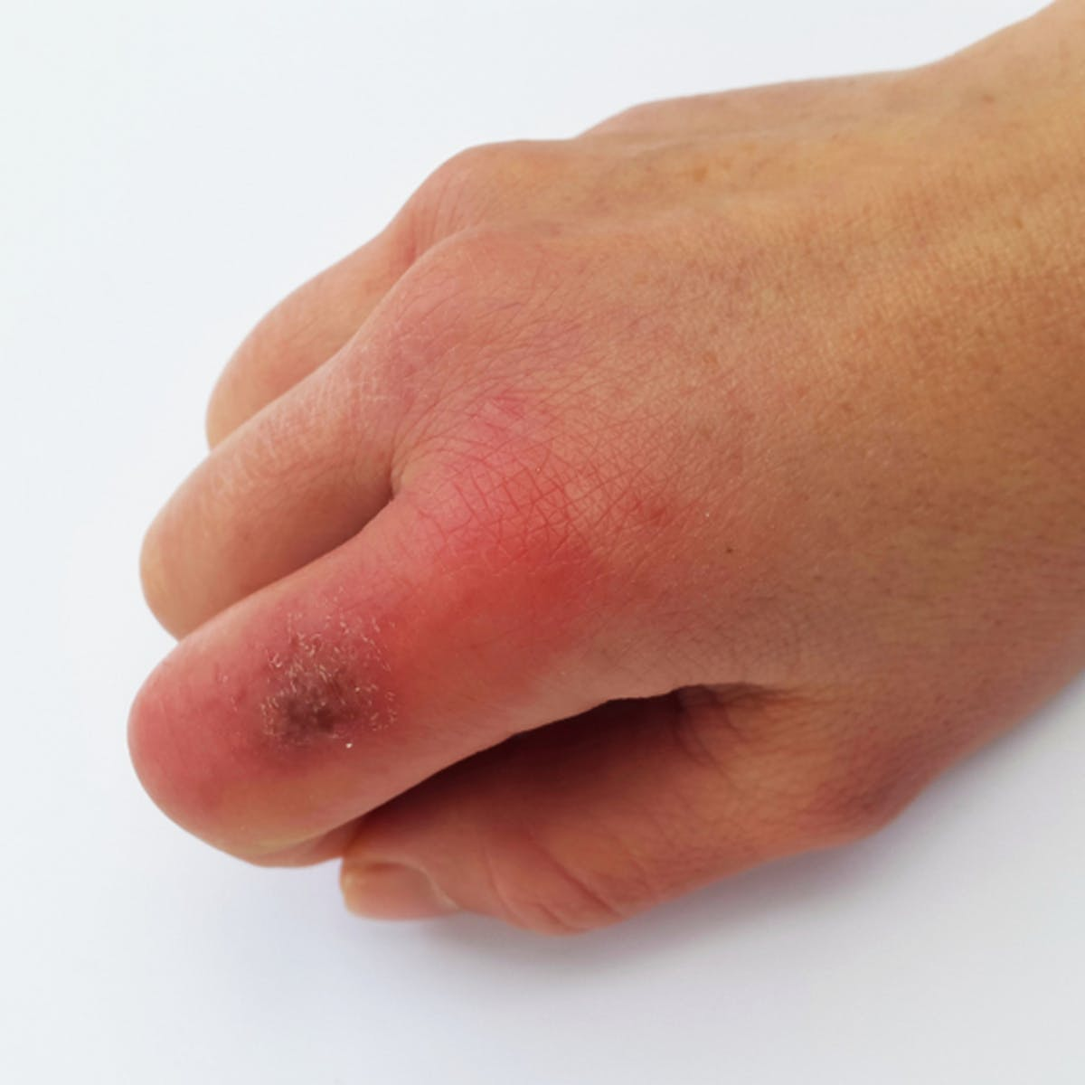 Health Check: what causes chilblains and how can I prevent them?