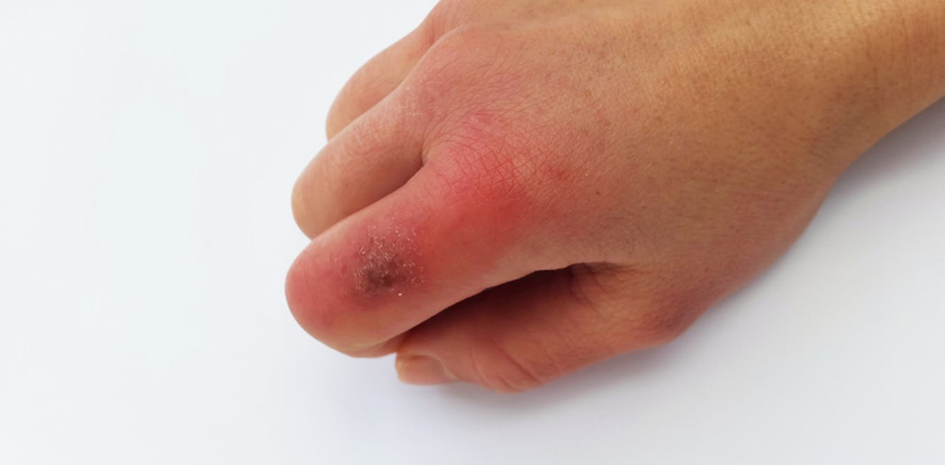 Health Check: what causes chilblains and how can I prevent ...