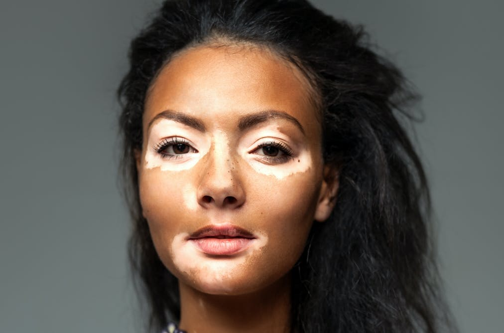 Why older skin heals with less scarring
