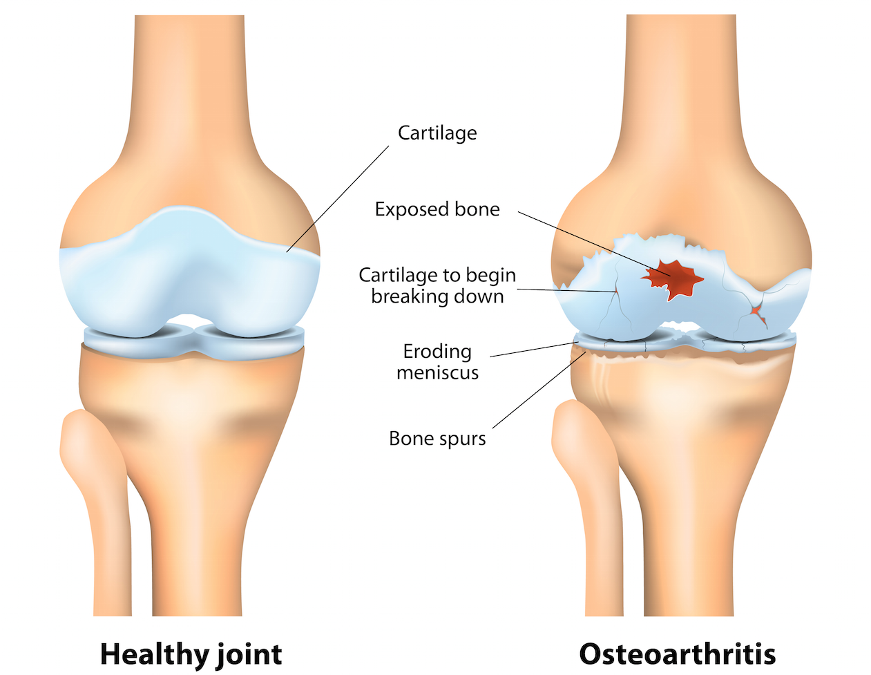 A healthy and an osteoarthritic joint.from www.shutterstock.com