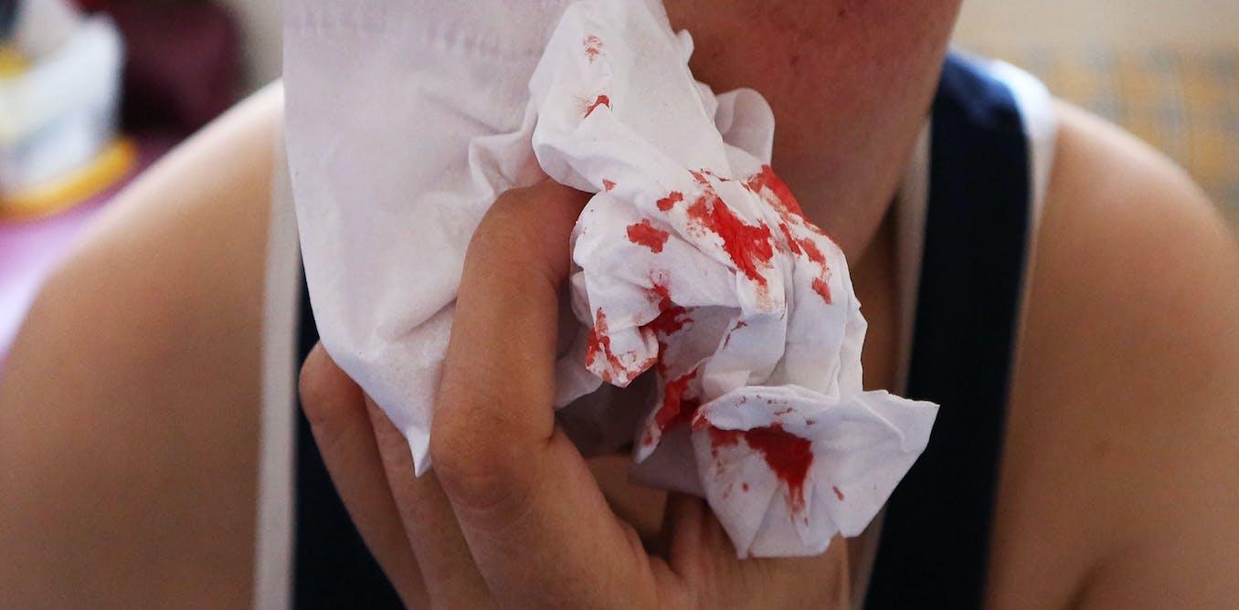 Health Check Why Do We Get Nose Bleeds