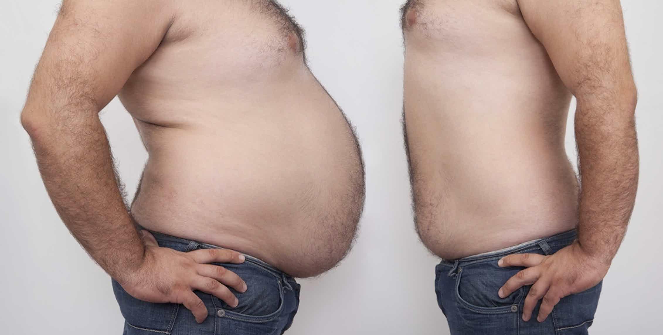 как убрать лишний вес у мужчин