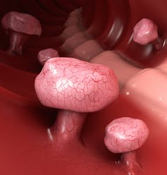 when is a colonoscopy necessary?
