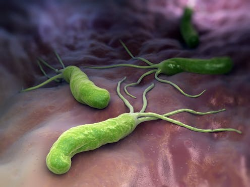 Explainer: what is Helicobacter pylori?