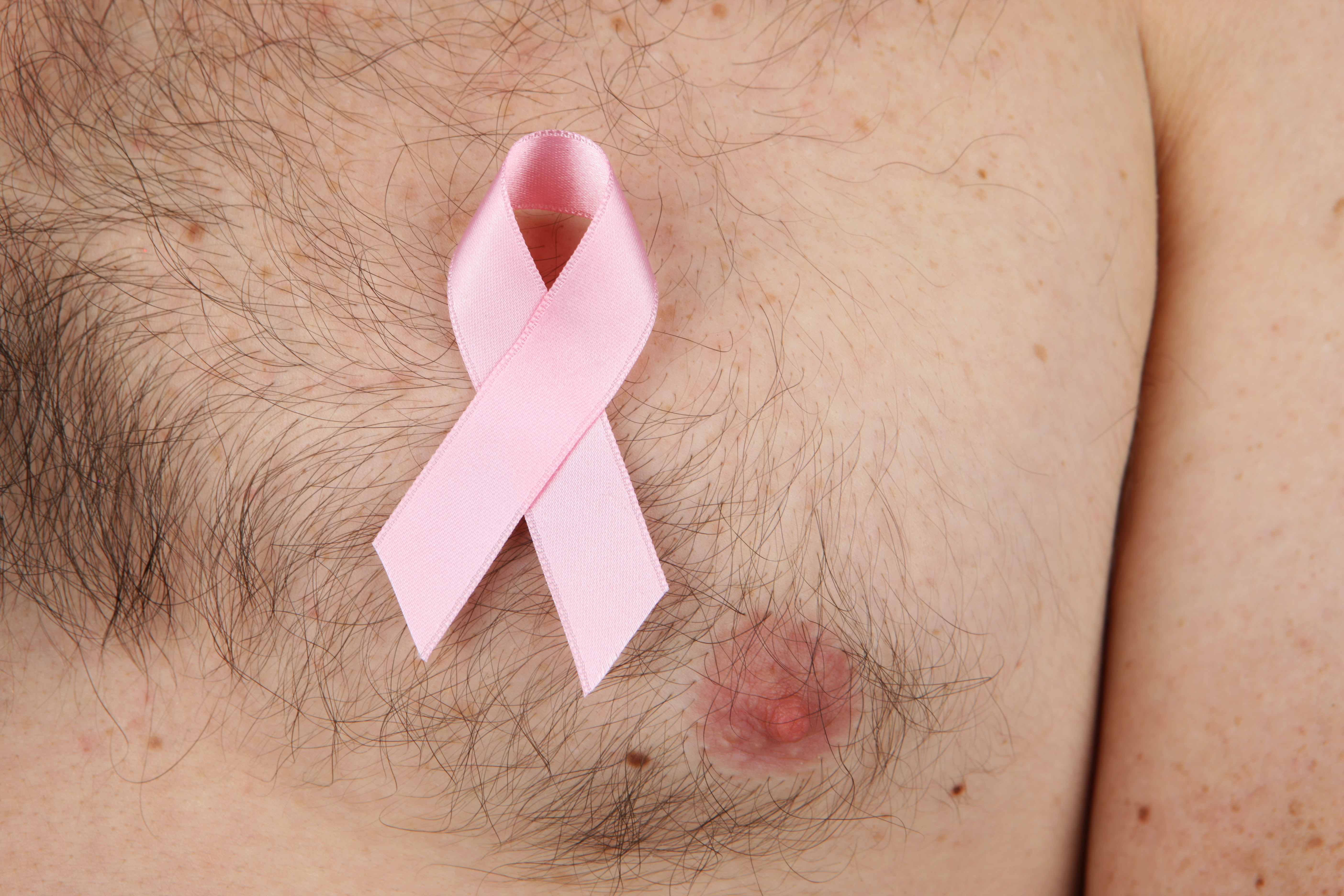 Stop marginalising men with breast cancer