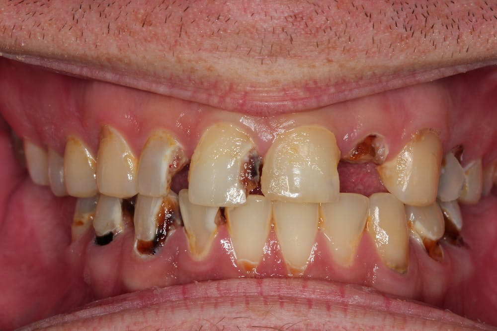 A closer look at how crystal meth attacks gums and teeth
